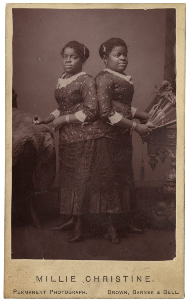 <strong> Millie-Christine McKoy. London, 1871. Photography by Brown, Barnes & Bell.</strong><br></br>Courtesy of Autograph ABP. Supported by the National Lottery through the Heritage Lottery Fund.<br></br>Millie-Christine McKoy (1851-1912) were American conjoined twins born into slavery and exhibited as a human curiosity in circus side-shows throughout the United States and England in the latter half of the 19th century. They became accomplished singers and pianists - billed as 'The Two-Headed Nightingale', their forenames were frequently hyphenated, as if it were just the one name. Fluent in five languages ('she' could even sing in two different languages at once), they toured America and Europe many times, and were invited to appear before numerous crowned heads.They performed for Queen Victoria in London on 24 June 1871. <br></br>Albumen carte-de-visite,  64x100mm.